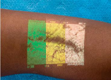 Imagem das três cores do Veinviewer