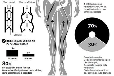 Imagem do MEDICINA AVANÇA NO TRATAMENTO DE VARIZES